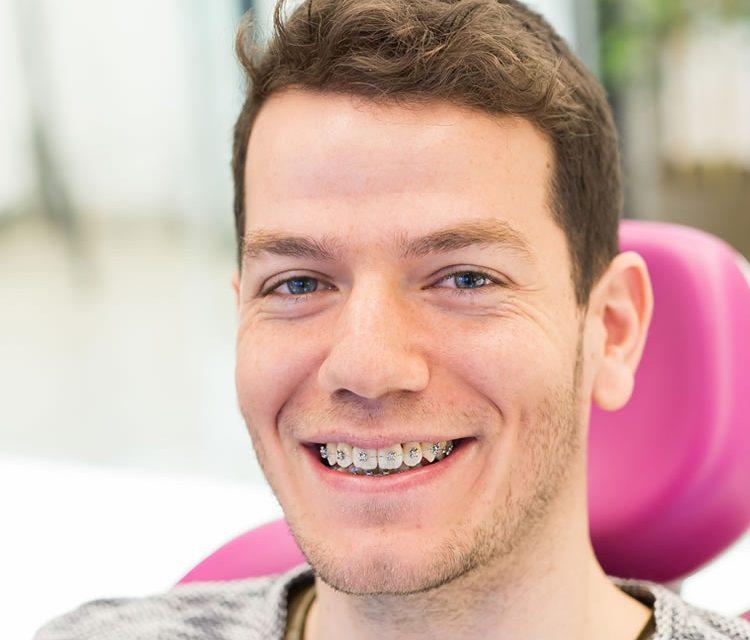 Diş Teli Tedavisine Ne Zaman Başlanmalı? - Dentvizyon