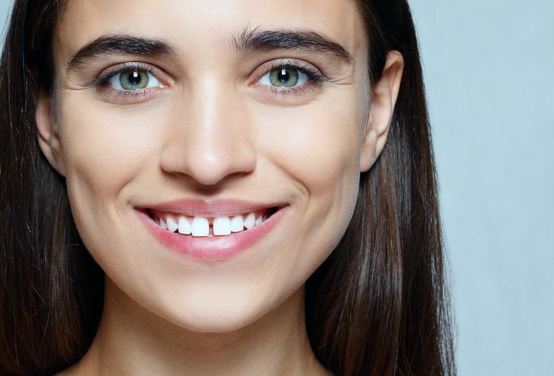 Ayrık Diş Birleştirme Tedavisi Nedir? Nasıl Yapılır?
