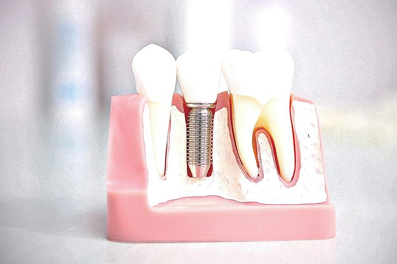 Tek Diş İmplant Tedavisi İstanbul