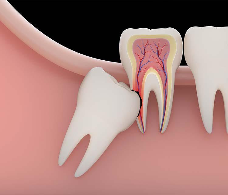 Gömülü Diş Tedavisi ve Gömülü Diş Çekimi
