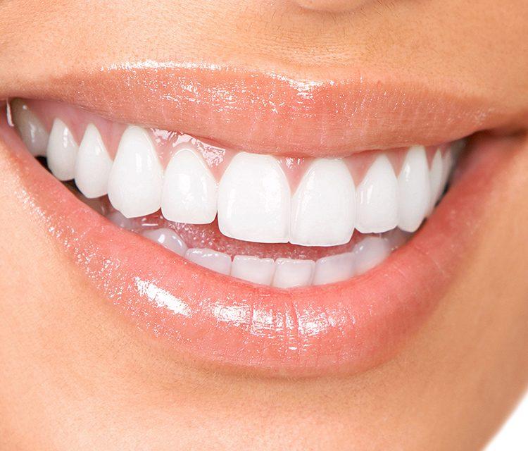 Bembeyaz Dişlere Kavuşmak Hayal Değil