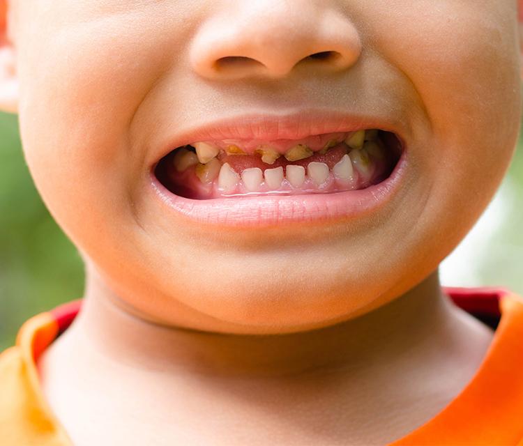 Çocuklarda ve Yetişkinlerde Diş Kırıklarının Tedavisi